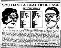 First Plastic Surgery in Britain